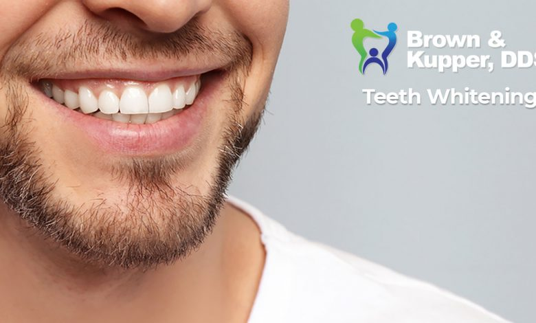 Photo of 8 Impressive Teeth Whitening Tricks For Busy Men and Women